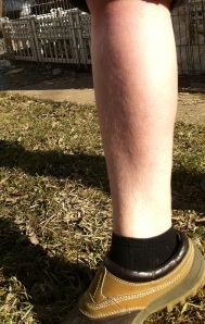 my hairy leg out in the sun